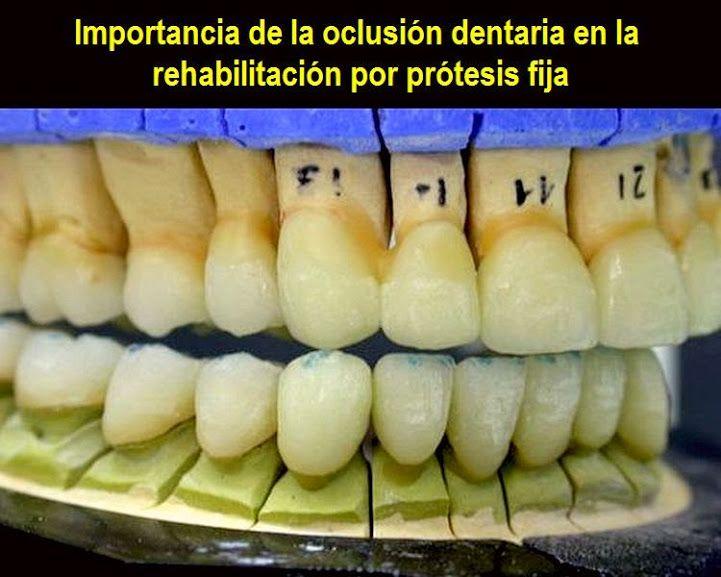 Importancia de la oclusión dentaria en la rehabilitación por prótesis fija | OVI Dental