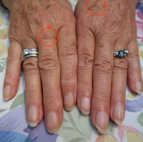 How to Get Rid of Liver Spots Naturallyat Home