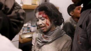 Syria war: Wounded 'to be evacuated from Eastern Ghouta'  rebels Latest News