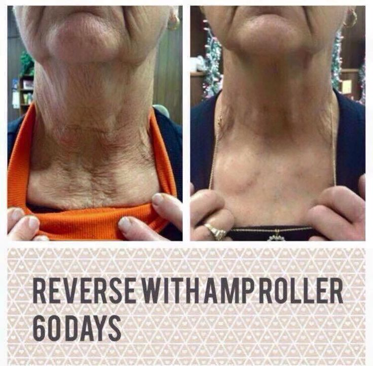 Rodan + Fields Redefine regimen coupled with AMP MD Roller makes that neck look amazing again...or prevents it from getting that way!! Message me!!