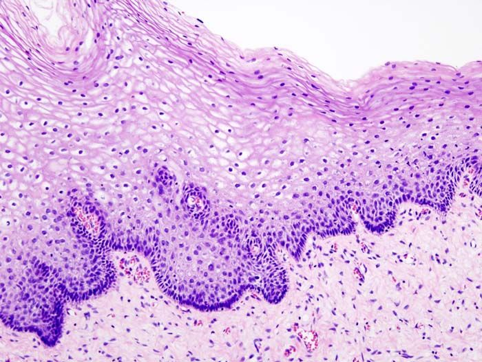 Cervical intraepithelial neoplasia (1) normal squamous epithelium.jpg