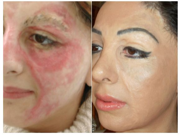 basma-hameed-before-after-she cosmetic-tattoo herself