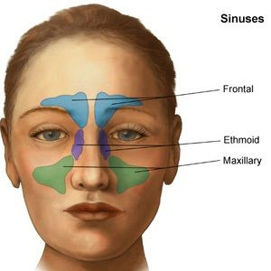 fascinating study on possible causal link between chronic sinusitis and fibromyalgia