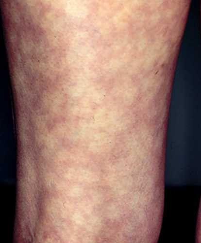 Viral Infection Link To Sjogren S Syndrome: Ehlers-danlos Syndrome Rash Related Keywords