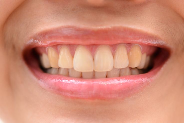 Enjoy the gradual natural whitening of your teeth while they re-mineralize.