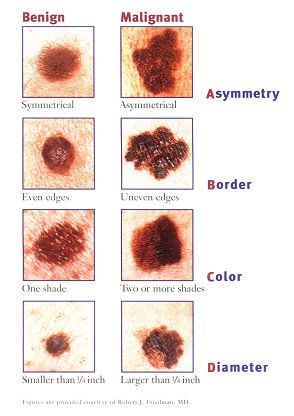 Sign and symptoms of moles.There is also an E- Evolving- growing changing colors or elevated. Itching and or b I was diagnosed with Malignant Melanoma this year. Please wear sunscreen!!