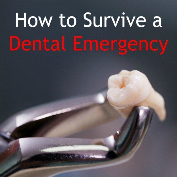 How to Survive a Dental Emergency | Backdoor Survival 21 Home Remedies for a Toothache