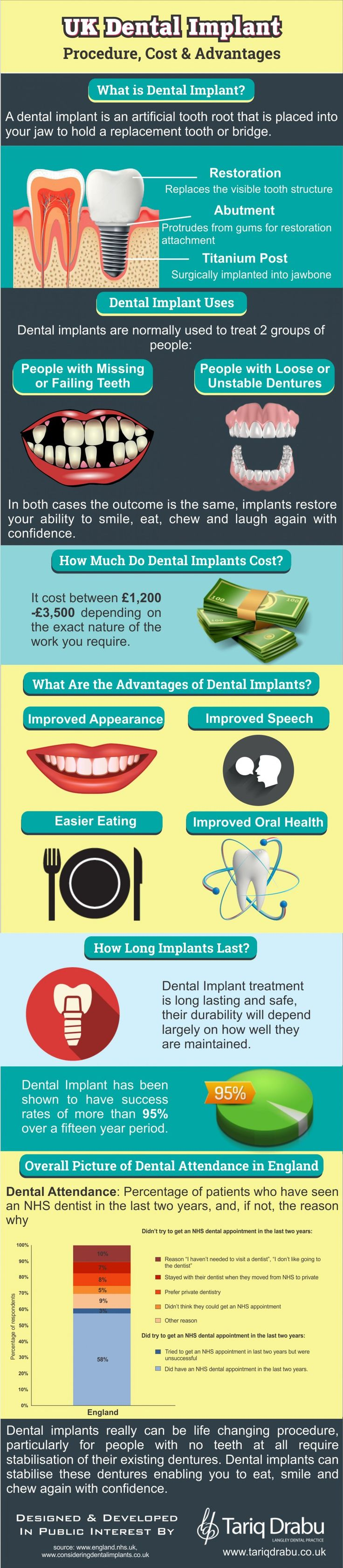 UK Dental Implant Procedure, Cost & Advantages