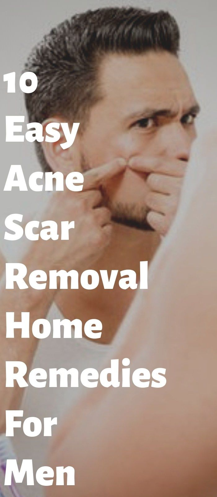 instant acne scar removal tips for men to remember menus