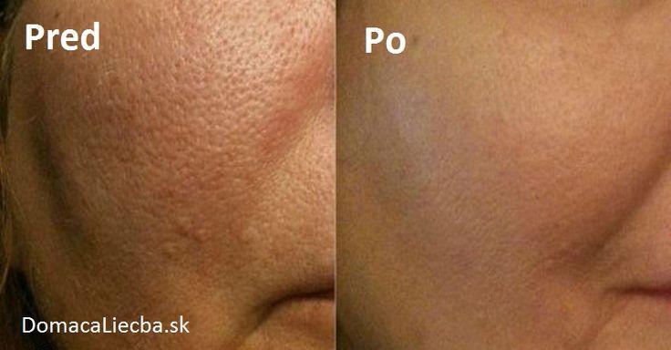 Máte na pokožke tváre veľké výrazné póry a neviete ako sa ich zbaviť? Potom máme pre vás hneď niekoľko veľmi účinných domácich receptov.