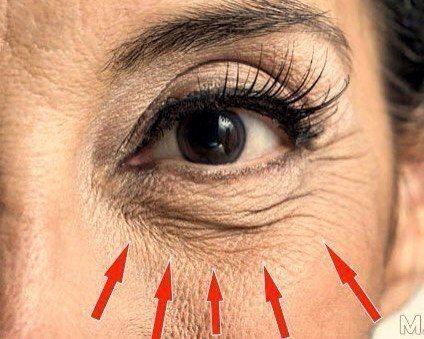 Надоели ужасные мешки под глазами и морщины на лице?