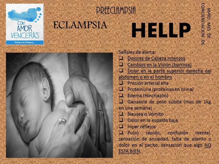 Prevención del nacimiento prematuro. Desordenes hipertensivos del embarazo.