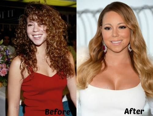 E Breast Implants Before And After 10 best images about P...