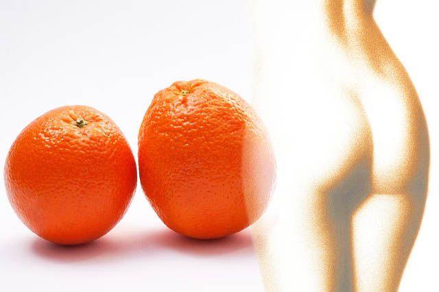 wat je kunt eten tegen cellulite cellulitis tips