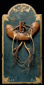 Ercole Lelli (1702-1776). Commissioned by Institute of Sciences to make a wax model of two abnormal kidneys joined at their lower extremity discovered during a public dissection of a cadaver by the 'Prosector,' Lorenzo Bonazzoli.
