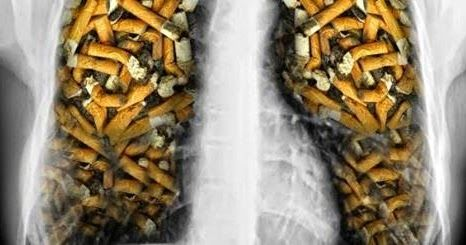 Un articol de Cristian Iacov    Tusesti dimineata din cauza fumatului? Pentru inceput, cel mai bine ar fi sa renunti la acest obicei nociv! ...