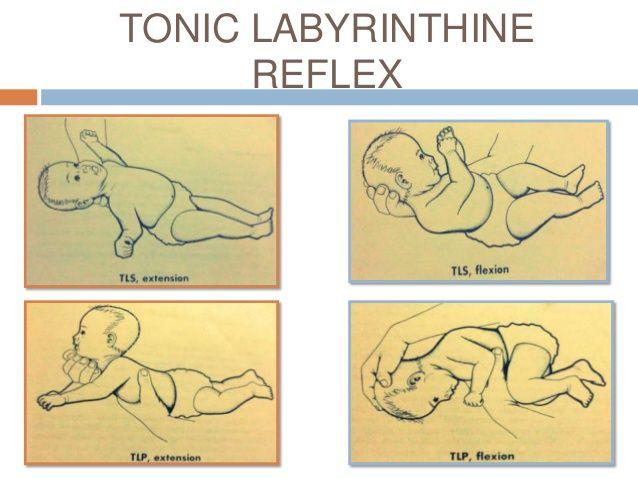 tonic labyrinthine reflex TLS: tonic labyrinthine supine ...