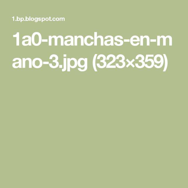 1a0-manchas-en-mano-3.jpg (323×359)