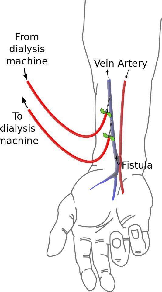 Fistula for hemodialysis