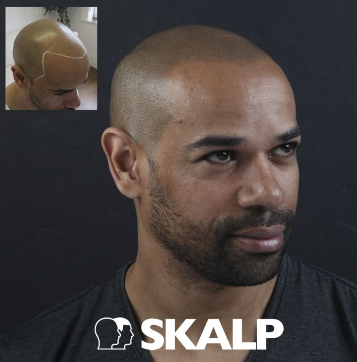 Find the solution to thinning hair, receding hairlines and male pattern baldness with scalp micropigmentation medical hairline tattoos. scalp micro pigmentation. www.skalp.com