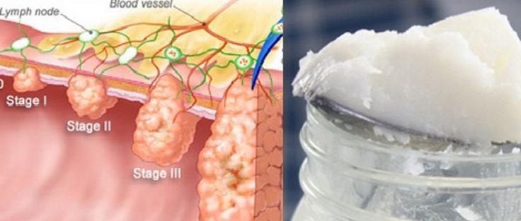 """Scienziati choc: """"Elimina il 93% del tumore in due giorni"""" Basta assumere ogni giorno tre cucchiaini di...."""