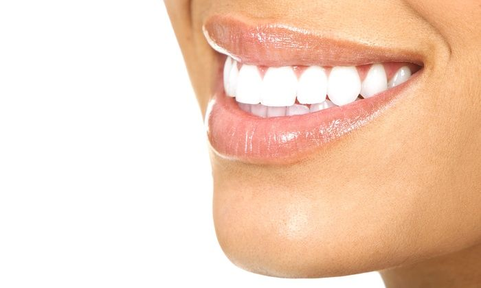 Things To Know About Opalescence Tooth Whitening System - http://emergencydentalcaretips.com/things-know-opalescence-tooth-whitening-system/ Learn about opalescence side effects opalescence 35% opalescence 15% opalescence 20 opalescence whitening trays opalescence pf opalescence toothpaste opalescence how long