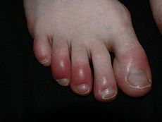 "Tender, red bumps called chilblains can be caused by lupus during winter time. Click https://plus.google.com/106749088806096753384/posts/RYD7wcAE8Zy to learn more. Go to http://www.facebook.com/LupusEncyclopedia or follow me on Twitter at https://twitter.com/lupuscyclopedia to get daily tips on living with and fighting the symptoms of lupus and related problems such as arthritis, fibromyalgia, and Sjögren's syndrome. It also answers questions such as ""What is lupus?"" and ""What causes lupus?"""