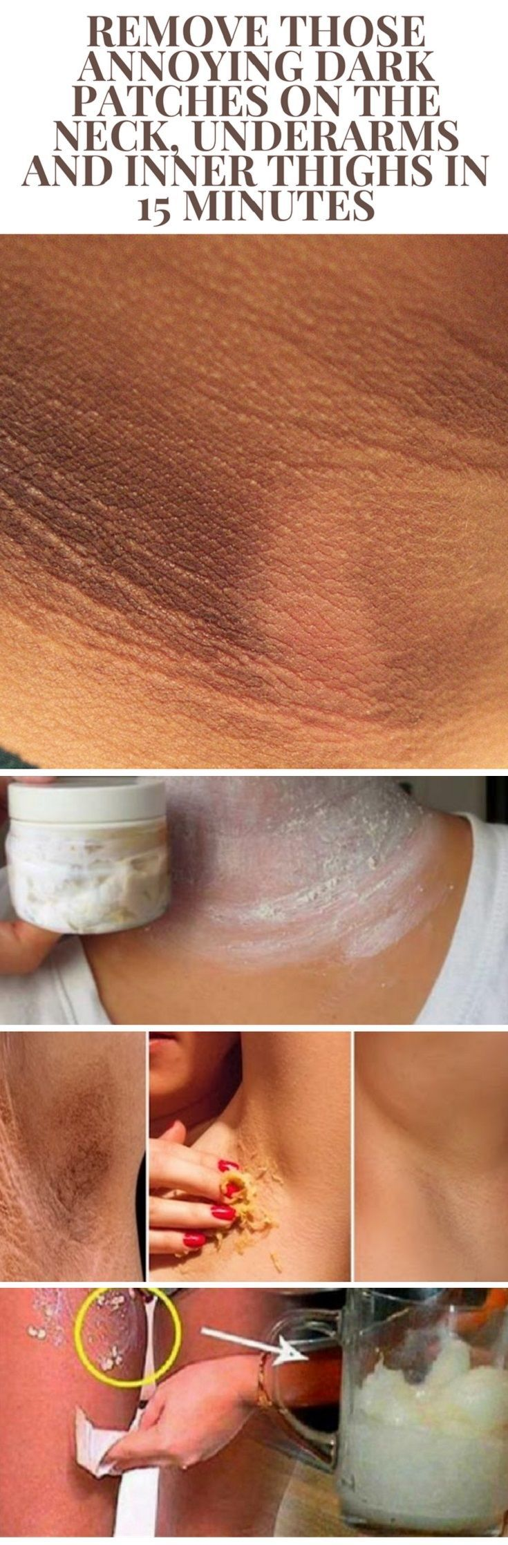 Remove Those Annoying Dark Patches on The Neck  Underarms and Inner Thighs in 15 Minutes Dark patches usually appear on the neck armpits and inner thighs due to waxing shaving using deodorants and even sun exposure. Moreover people suffering from obesity diabetes or gastrointestinal or genitourinary cancers usually have dark spots of these areas on the skin such as people who undergoing hormonal treatments. People spend lots of money on