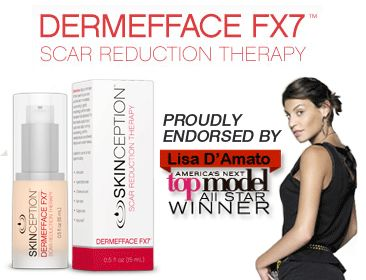 Dermefface FX7 - Erase acne, surgery, and injury scars... kind like magic :-)