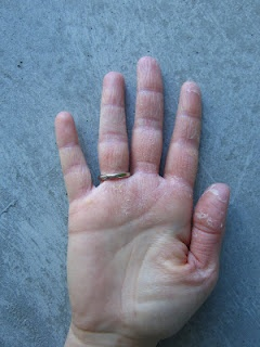 What a combination!  TIPS for Toes and the Revival Skin Conditioning Milk have rescued Elena's hands from an embarrassing, painful state.  #skincare, #dry skin, #dry hands  www.askcosmetics.com