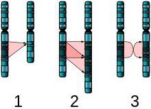 Chromosome abnormality - Wikipedia, the free encyclopedia