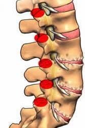 Facet joint are  joints found in spine, degeneration of this facet joint is called facet Disease.