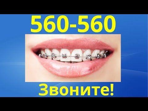 поставить брекеты оренбург - Звоните 560-560