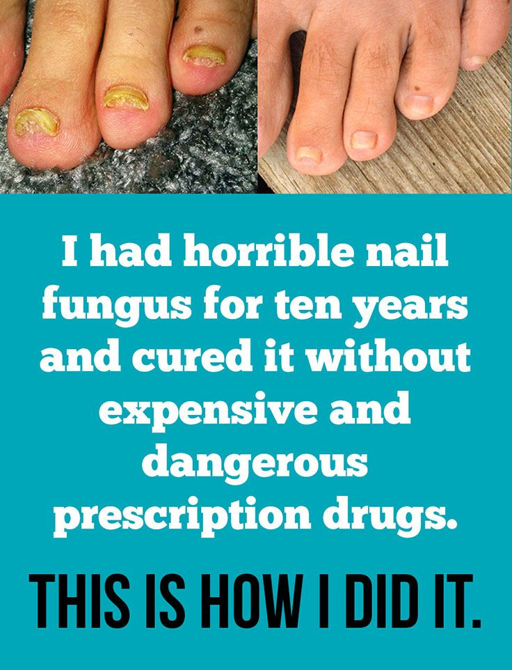8056 best Toenail Fungus Cure images on Pinterest | Fungi, Beauty ...