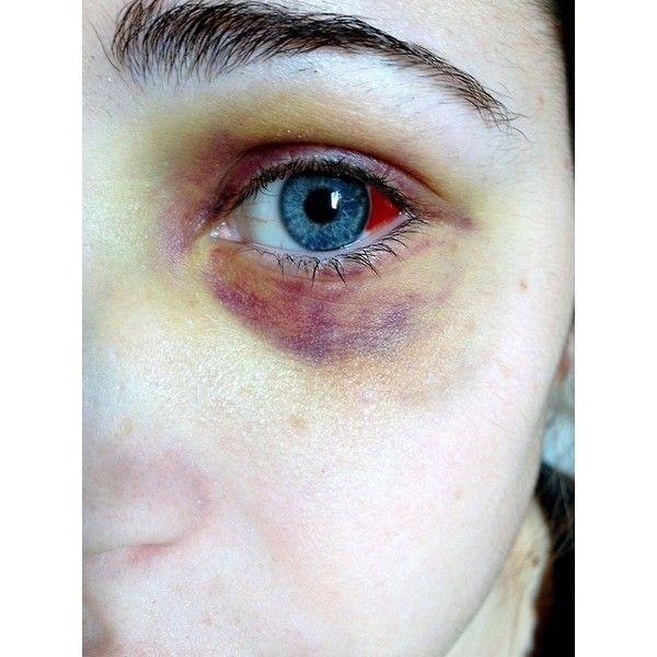eye bruises bruised Black Eye ❤ liked on Polyvore featuring injuries