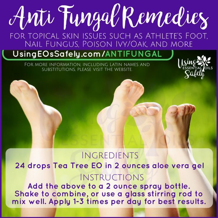 Anti-Fungal remedies for topical skin issues such as Athlete's Foot, Nail Fung…  #athlete #…