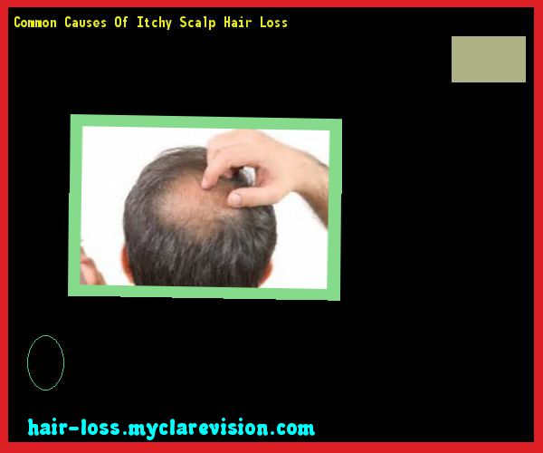 Common Causes Of Itchy Scalp Hair Loss 141054 - Hair Loss Cure!