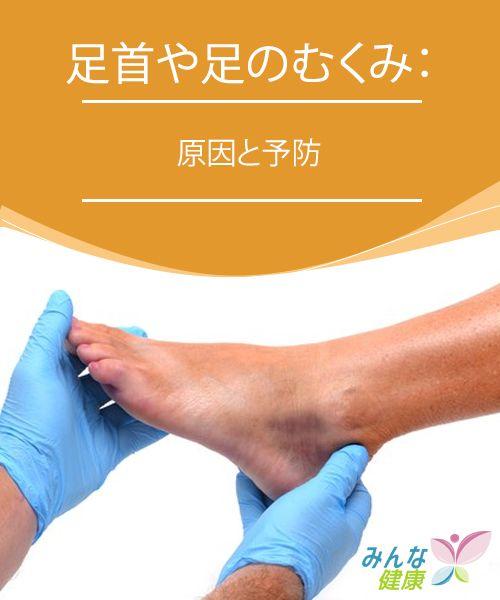 足首や足のむくみ:原因と予防 足首や足のむくみはよくある症状ですが、特に一日中立ちっぱなしだったり、よく歩いたりする場合、気をつけようがないことも一般的です。