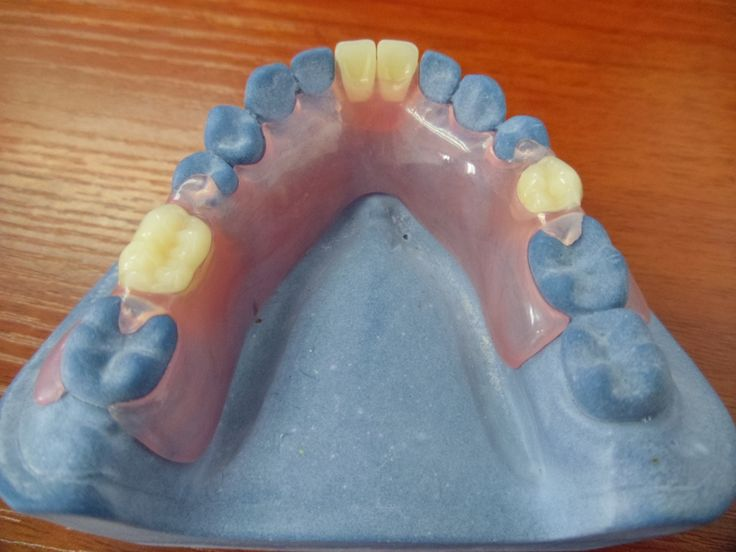 how to clean denture pins