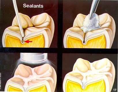 Journal of Clinical Pediatric Dentistry Delhi India