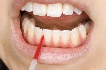 Tipps wie Sie Zahnstein selber entfernen können Erfahren Sie wie Sie Zahnstein selber entfernen mit einfachen Mitteln und Werkzeugen. Denn schöne und gesunde Zähne bis ins hohe Lebensalter wünscht sich jeder. Neben Karies und Parodontose gehört Zahnstein zu den häufigsten Symptomen im Mundraum, der einen großen Einfluss auf die Gesundheit von Zähnen und Zahnfleisch nimmt. …