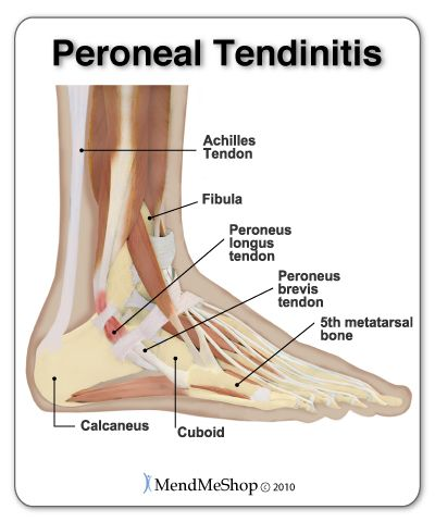 If you have peroneal tendonitis you'll likely feel pain on the back and outer side of your foot and ankle. This injury will create radiating pain that you'll feel when standing and pushing off with your foot when walking. #peronealtendonitis