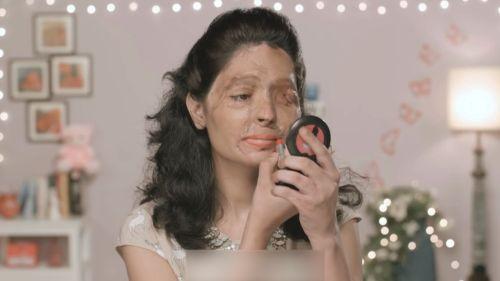 A Reshma, como a otras tantas mujeres, le rociaron el rostro con ácido  sulfúrico, algo que supuso que perdiera su ojo izquierdo, sufriera infecciones y  se le desconfigurara la cara. Sin embargo tien