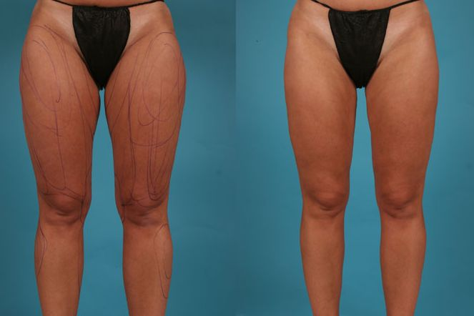 CoolSculpting Inner Thighs Before and After Body Sculpting is a great way to get a better body