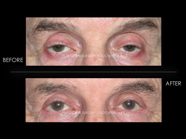 17 best images about cosmetic eye surgery on pinterest for What fish has eyelids