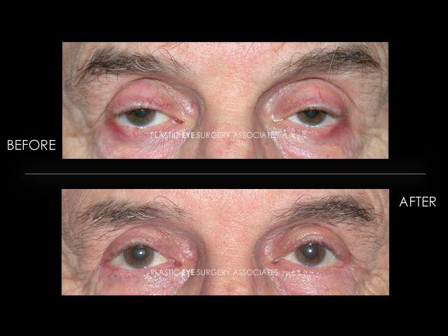 Best Cosmetic Eye Surgery
