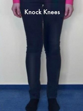 knock knees trousers