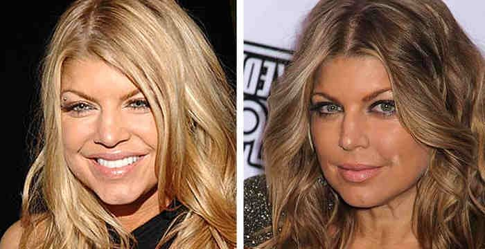 Fergie Plastic Surgery Botox Injections