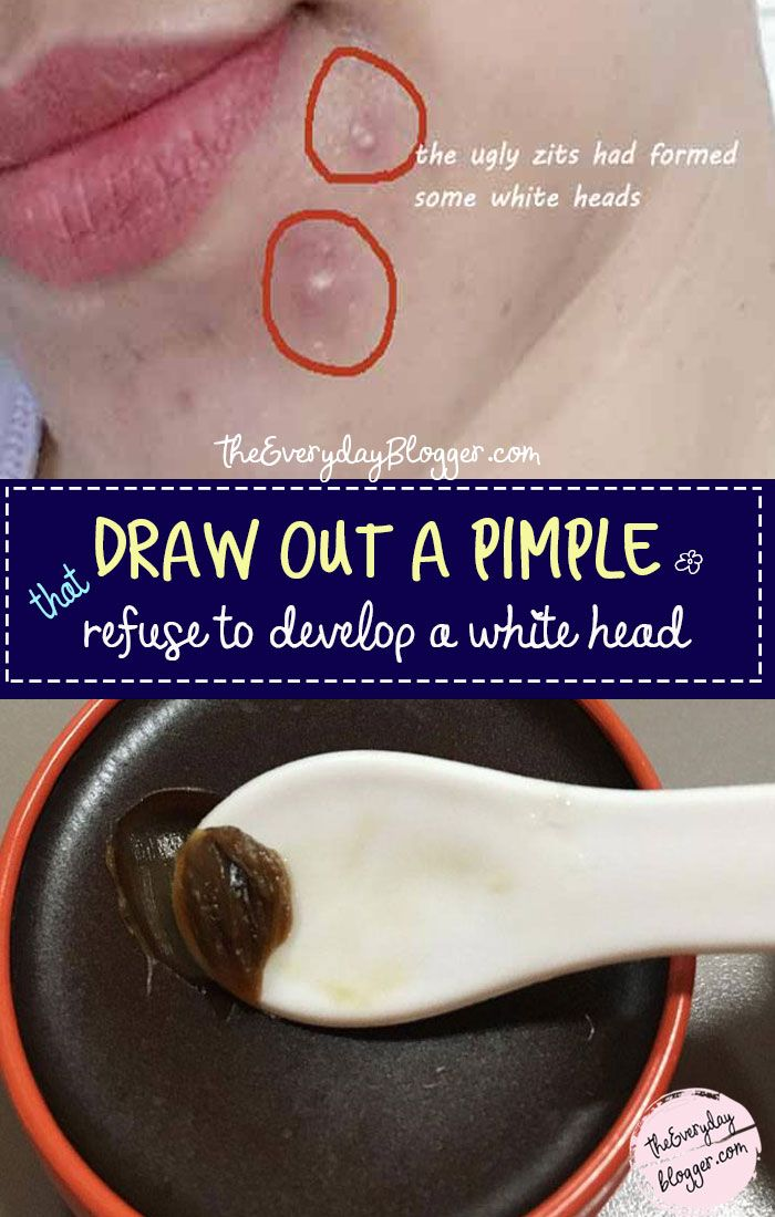 #DrawOutaPimple – A blind pimple is an under the s…