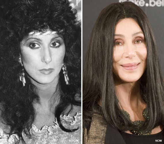 Cher Plastic Surgery Before & After - http://plasticsurgerytalks.com/cher-plastic-surgery/